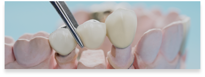 https://brenchleydental.co.uk/wp-content/uploads/2021/01/Group-241.png