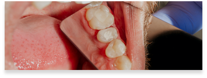 https://brenchleydental.co.uk/wp-content/uploads/2021/01/Group-243.png