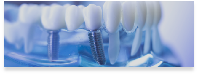 https://brenchleydental.co.uk/wp-content/uploads/2021/01/Group-247.png